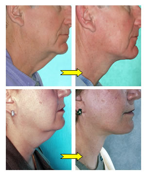 neck lift, necklift, plastic surgery, procedure, face and neck lift before and after pictures